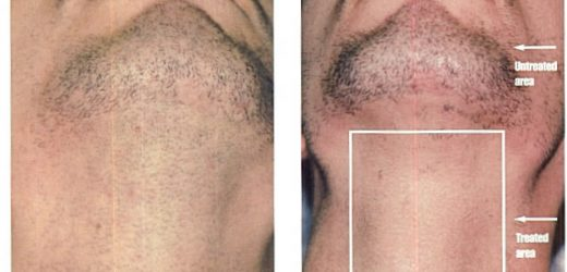 Understanding What Is Laser Hair Removal And How It Can Help You